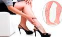 Realizarán cirugías láser efectivas de varices por el Día de la Mujer