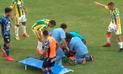 Twitter: Futbolista sufre fractura de cráneo tras recibir un brutal codazo [VIDEO]