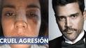 Actriz Eileen Moreno detalla cómo fue la brutal agresión por parte de actor colombiano