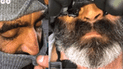Facebook Viral: Furor en redes sociales luego que 'hombre lobo' se depilara [VIDEO]