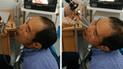 Facebook: Doctor le revisa la nariz a asiático y encuentran extraña criatura