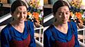 YouTube viral: médico sustrae extraña sustancia de frente de una mujer en Tailandia [VIDEO]