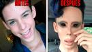 YouTube viral: personas se sometieron a cirugías extremas y terminaron con un aterrador aspecto [VIDEO]