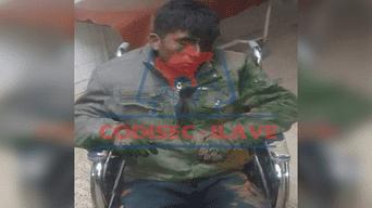 Herido fue llevado al hospital de Ilave