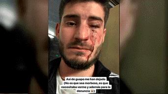 Instagram, Homofobia, Barcelona, España, violencia