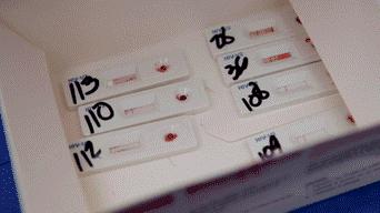 Diagnóstico del VIH