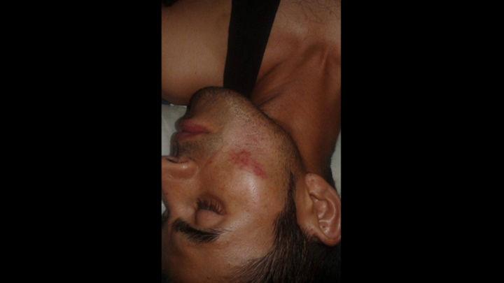 Joven sufrió golpes en la cara