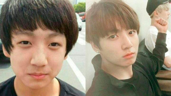 Algunos incluso aclararon que habrían cirugías en su rostro, con la intención de convertirse en un ídolo juvenil. (Captura Instagram)